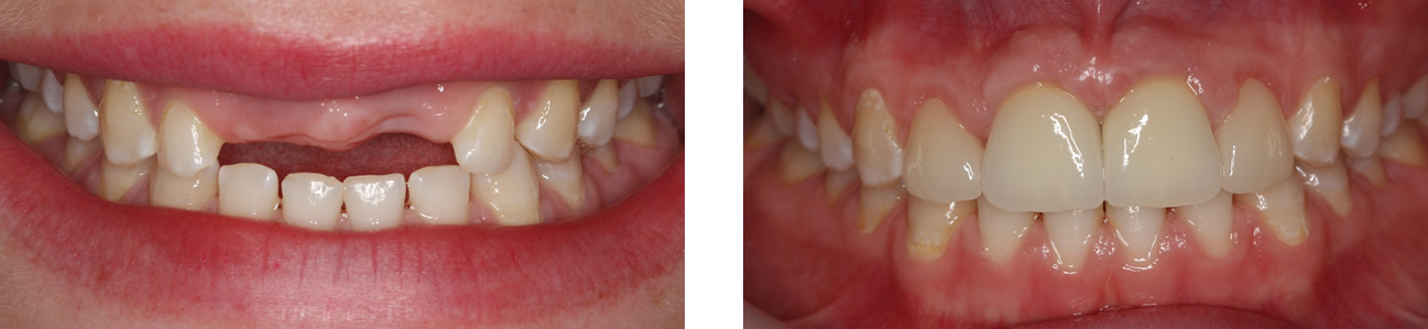 implant-before-after