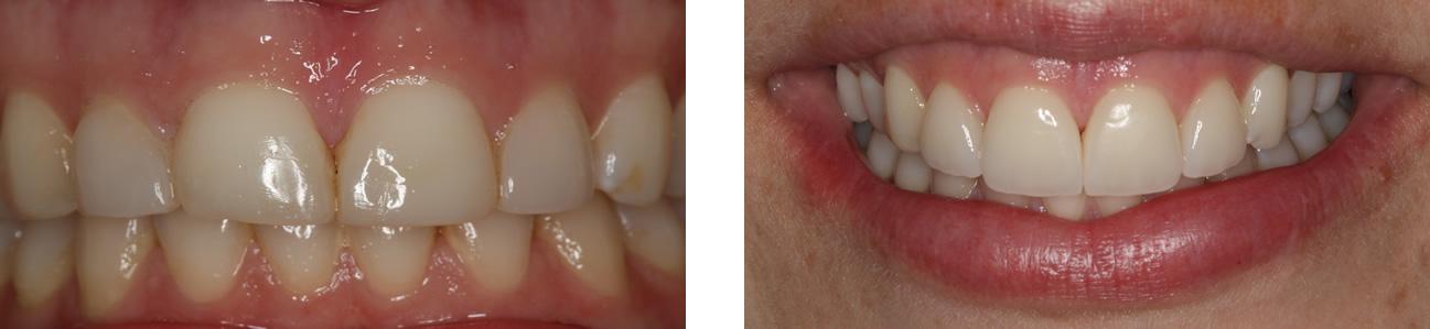 karina-before-after