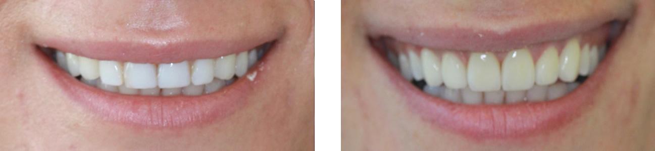 tina-before-after